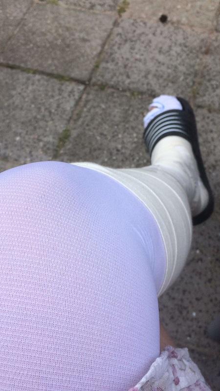 trombose karin ziek been steunkous